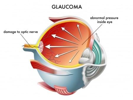 Glaucoma Orange County CA