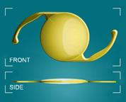 Cataract Surgery and Astigmatism