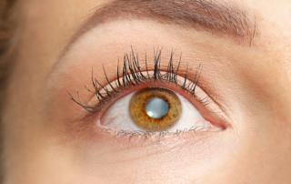 south-cal-eye- what-do-cataracts-look-like